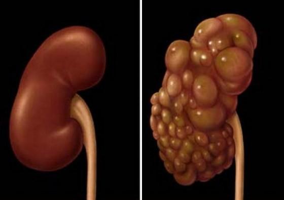 Medicamentul natural ce topește chisturi de pe ficat, plămâni, rinichi, ovare
